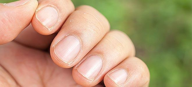 Πως θα σταματήσω να τρώω τα νύχια μου;